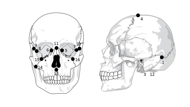 Common craniofacial landmarks.
